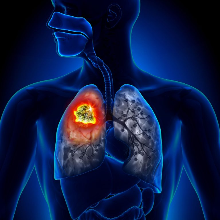 A New Lung Cancer Blood Test – A Promising New Innovation for Early Detection?